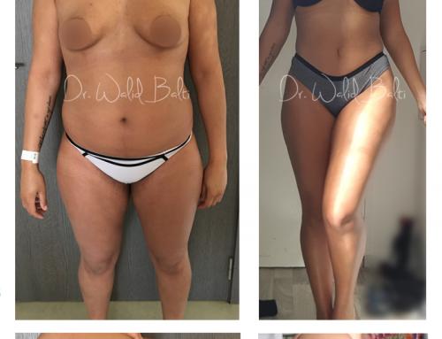 شفط الدهون, نفخ أو تكبير الأرداف و تكبير حجم الثدي