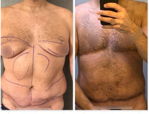 شفد الدهون, إعادة شد البطن تمت في المرة الأولى من طرف جراح آخر، جراحة التثدي عند الرجال