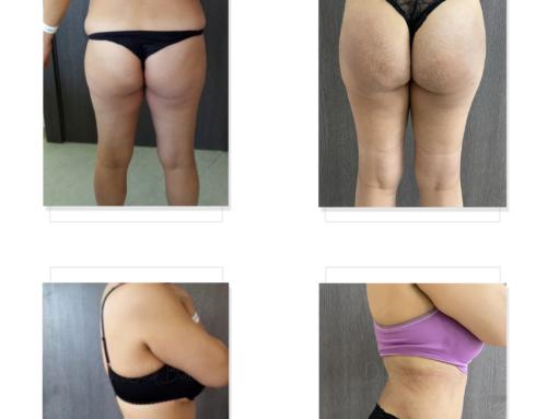 شفط الدهون 360 و تكبير المؤخرة بالدهون الذاتية