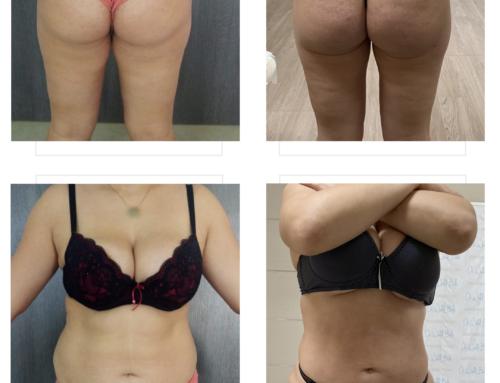 تكبير المؤخرة بتعبئة الدهون الذاتية