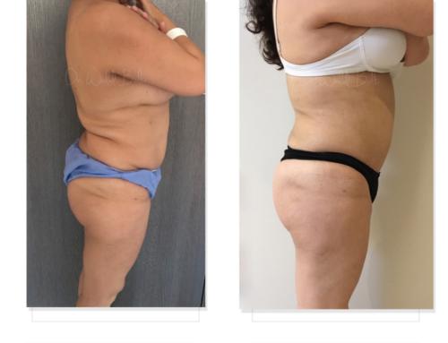 إعادة شفط الدهون وتعبئة المؤخرة بالدهون الذاتية تمت في المرة الأولى من طرف جراح آخر