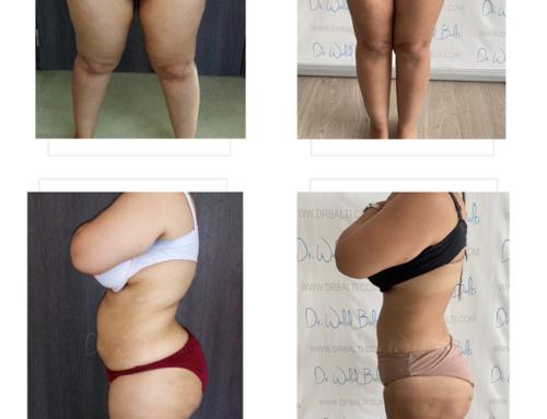 شفط الدهون